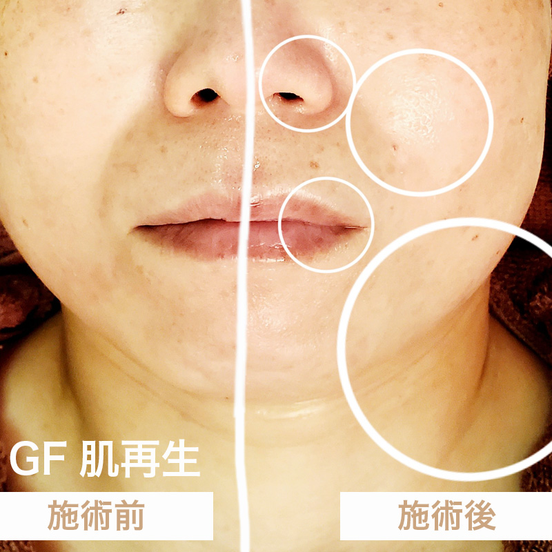 GF肌再生Before-After